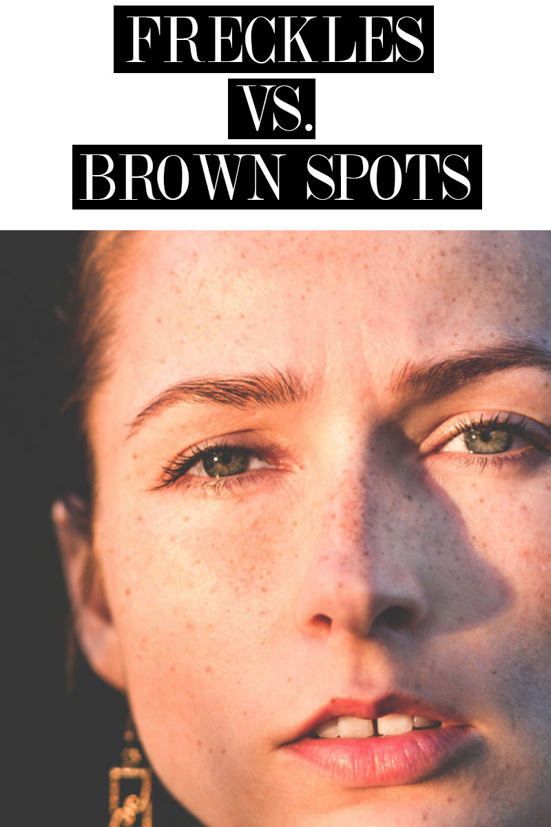 Want to know the difference between freckles and brown spots? Here are all the details