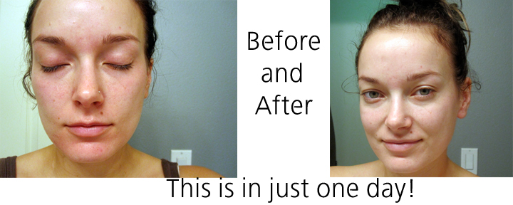 Before and After RF Picture2 Review  Rodan + Fields Anti Age AMP MD Skincare Roller Review  A Must Read!