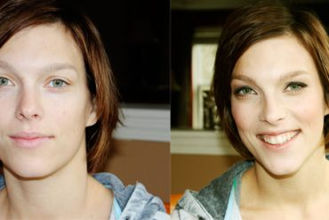 before-after-kristi