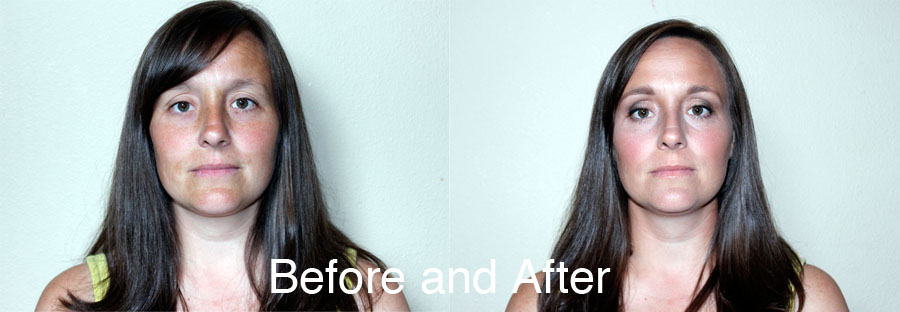 Full-face-contour-before-after