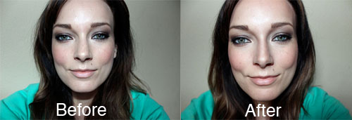 Nose-contouring-before-after