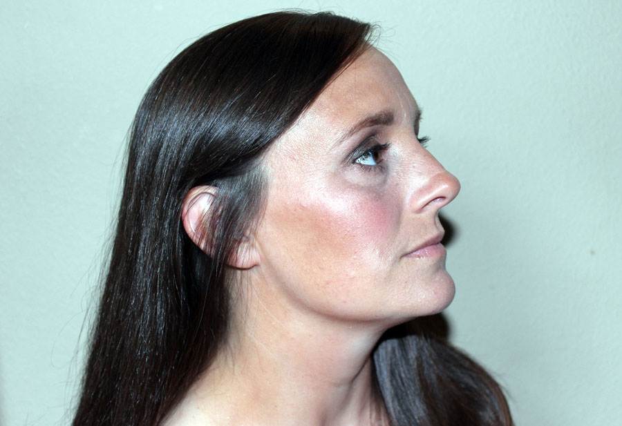 thin-face-contour-highlighting-2
