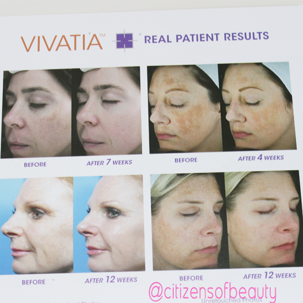 Vivatia Results Precision MD Vivatia Advanced Skincare System (Review)