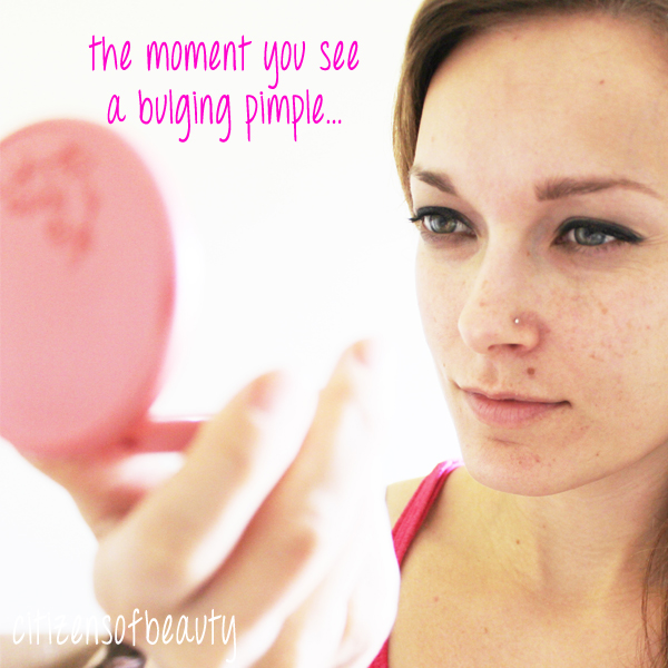 Natural Ways To Pop Pimples