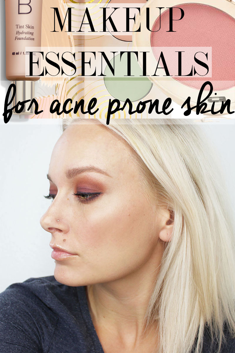 Find out the best makeup essentials for acne prone skin.