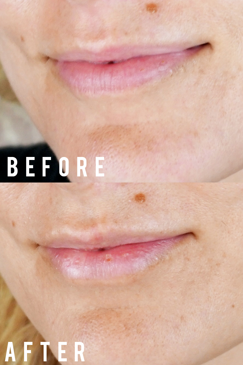 volbella lip injections before and after for natural look