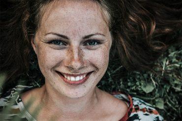 freckles vs sun spots and sun damage