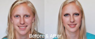 Brooke_Schwab_Before_After