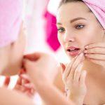 8 Ways to Help Acne