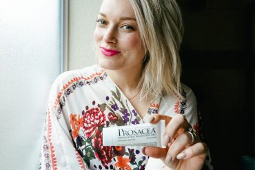 Skincare tips and tricks to helping Rosacea skin sufferers by beauty and lifestyle blogger, Kendra Stanton.