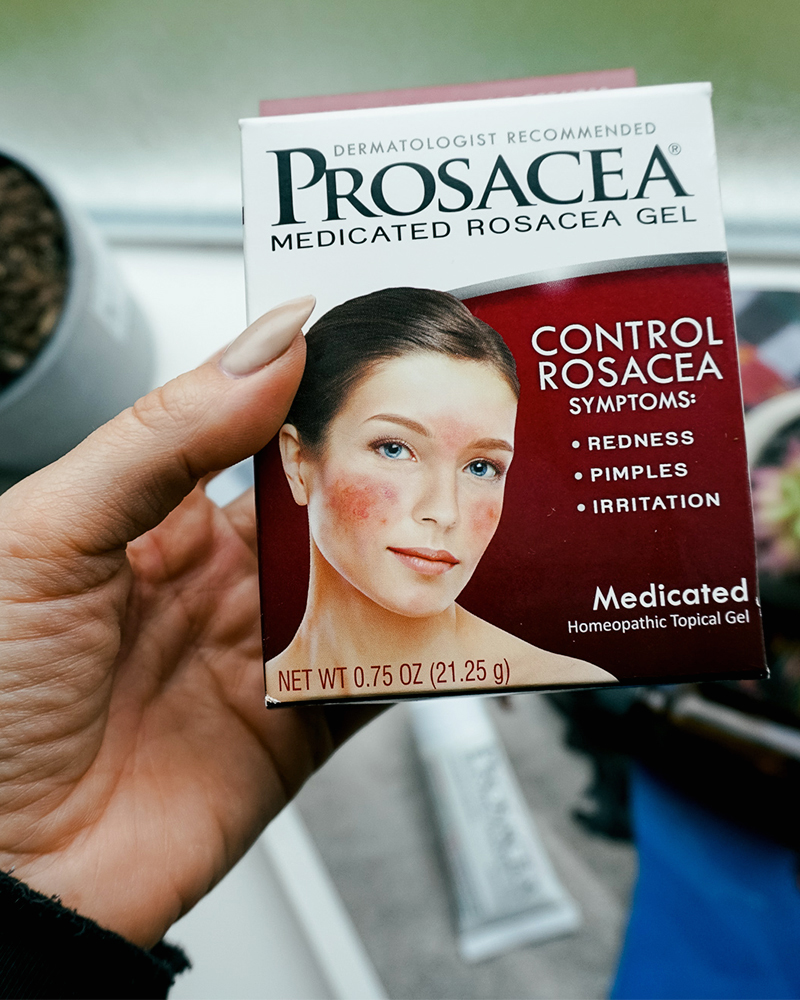 How to treat your Rosacea with easy skincare tips and tricks by beauty and lifestyle blogger, Kendra Stanton